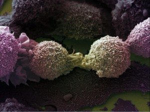 Células cancerígenas de pulmón. / Wellcomes Images